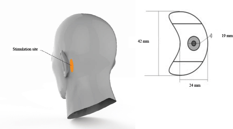 Figure 2: Position of the stimulation electrode placed on the mastoid area behind the ear